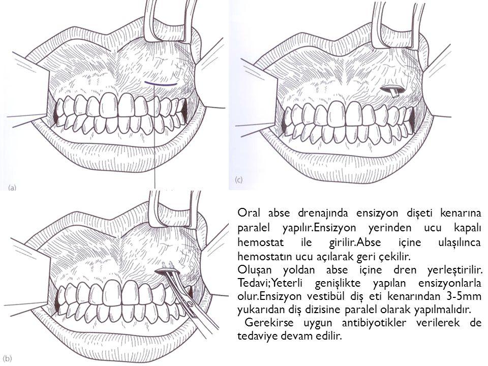 Oral abse drenajında ensizyon dişeti kenarına paralel yapılır.Ensizyon yerinden ucu kapalı hemostat ile girilir.Abse içine ulaşılınca hemostatın ucu açılarak geri çekilir.