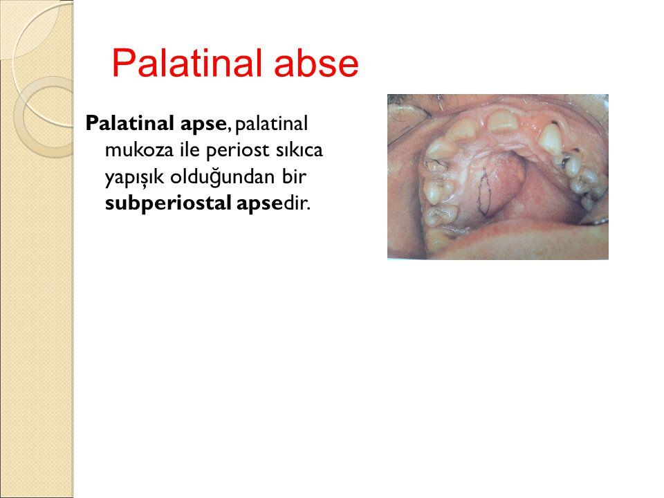 Palatinal abse Palatinal apse, palatinal mukoza ile periost sıkıca yapışık oldu ğ undan bir subperiostal apsedir.
