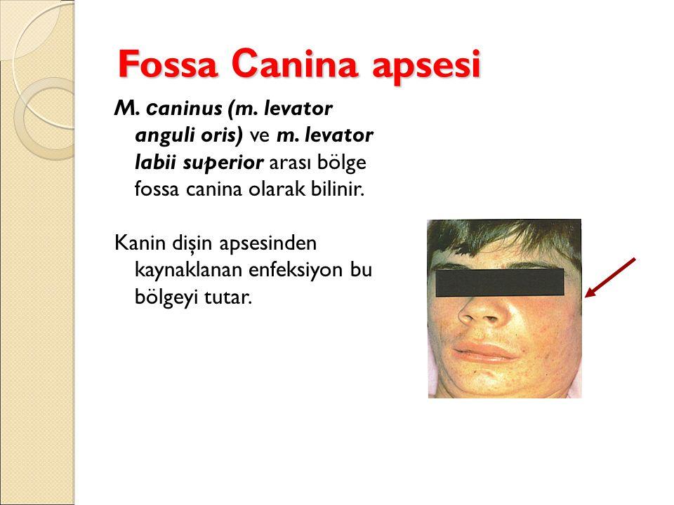 Fossa C anina apsesi M. c aninus (m. levator anguli oris) ve m. levator labii superior arası bölge fossa canina olarak bilinir. Kanin dişin apsesinden