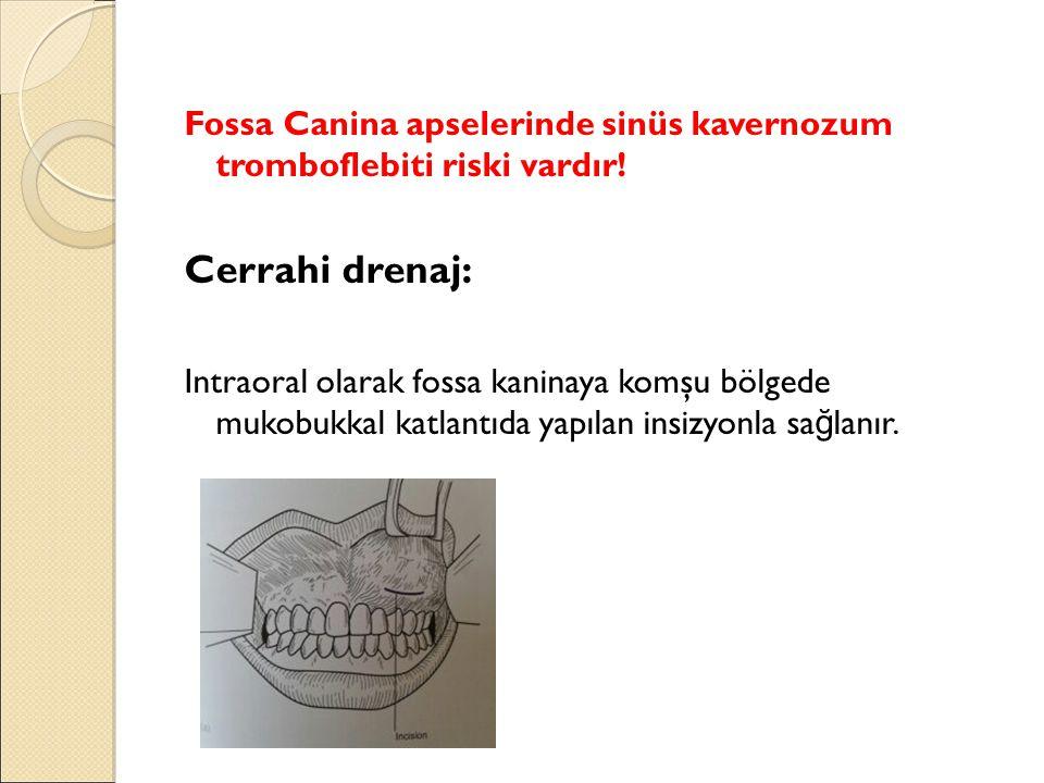 Fossa Canina apselerinde sinüs kavernozum tromboflebiti riski vardır.