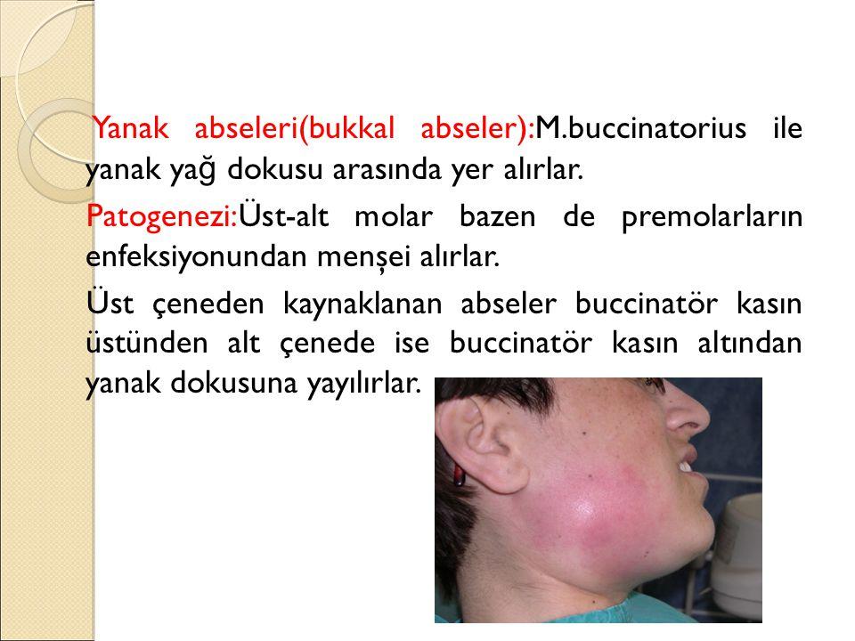 Yanak abseleri(bukkal abseler):M.buccinatorius ile yanak ya ğ dokusu arasında yer alırlar.