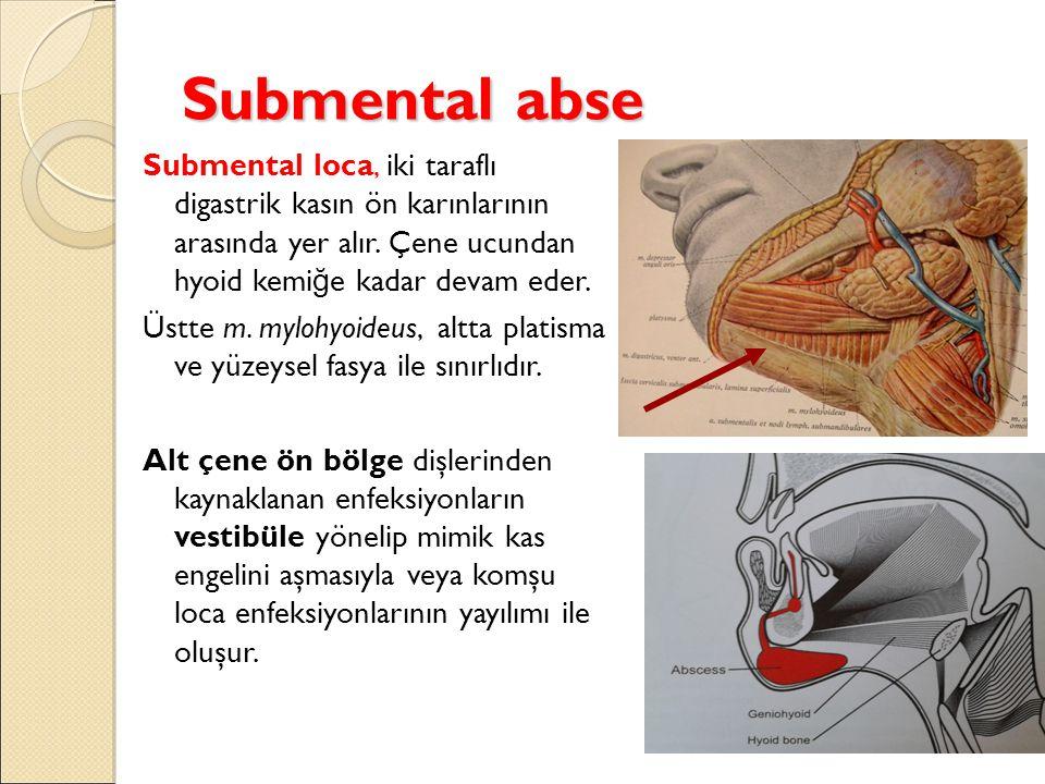 Submental abse Submental loca, iki taraflı digastrik kasın ön karınlarının arasında yer alır.