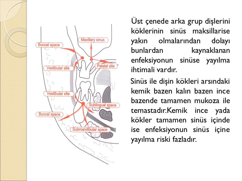 Odontogen kaynaklı enfeksiyonların yayılması esnasında üst çenede primer olarak fossa kanina,bukkal ve infratemporal bölgeler, fossa pterygo palatina.