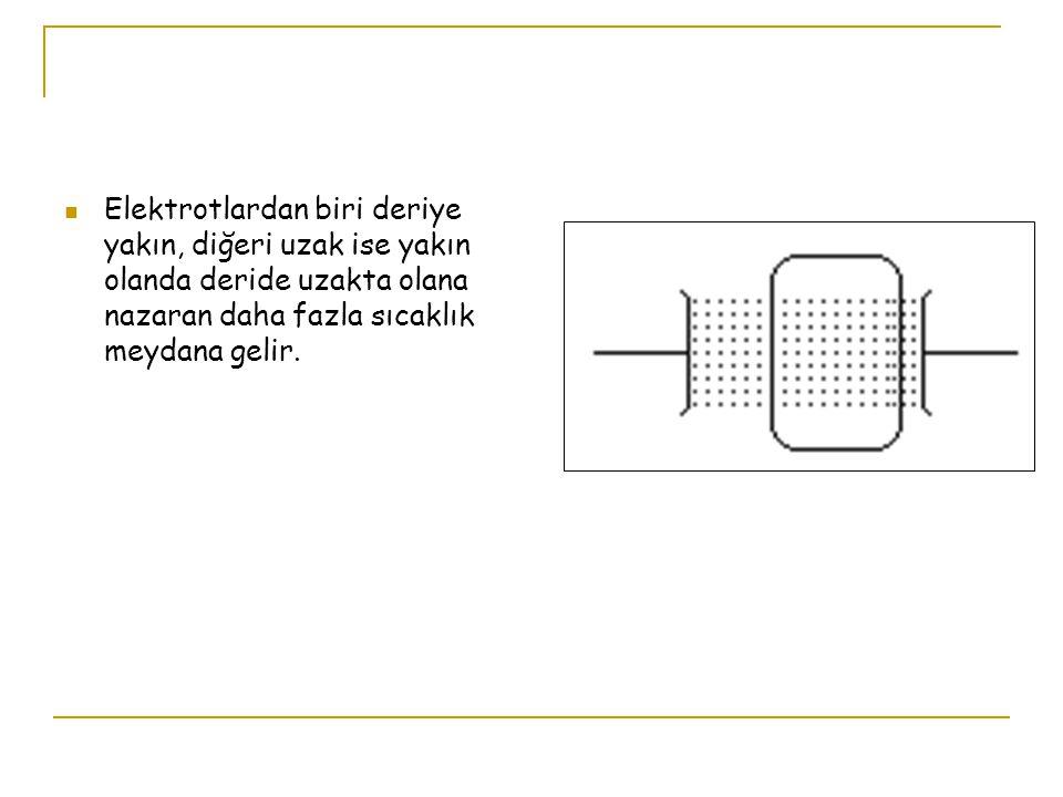 Elektrotlardan biri deriye yakın, diğeri uzak ise yakın olanda deride uzakta olana nazaran daha fazla sıcaklık meydana gelir.