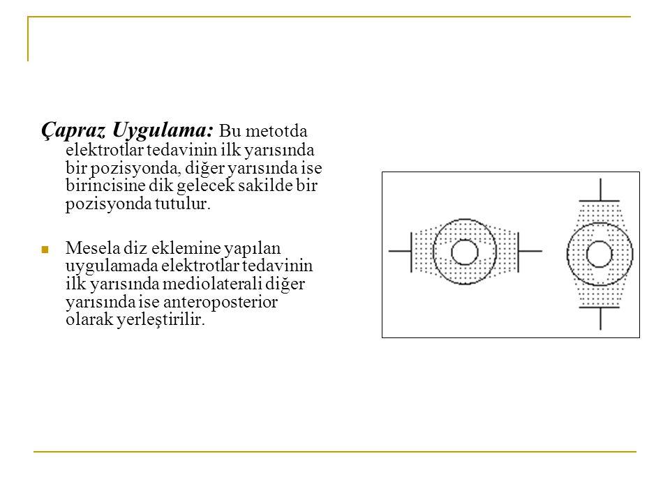 Çapraz Uygulama: Bu metotda elektrotlar tedavinin ilk yarısında bir pozisyonda, diğer yarısında ise birincisine dik gelecek sakilde bir pozisyonda tut