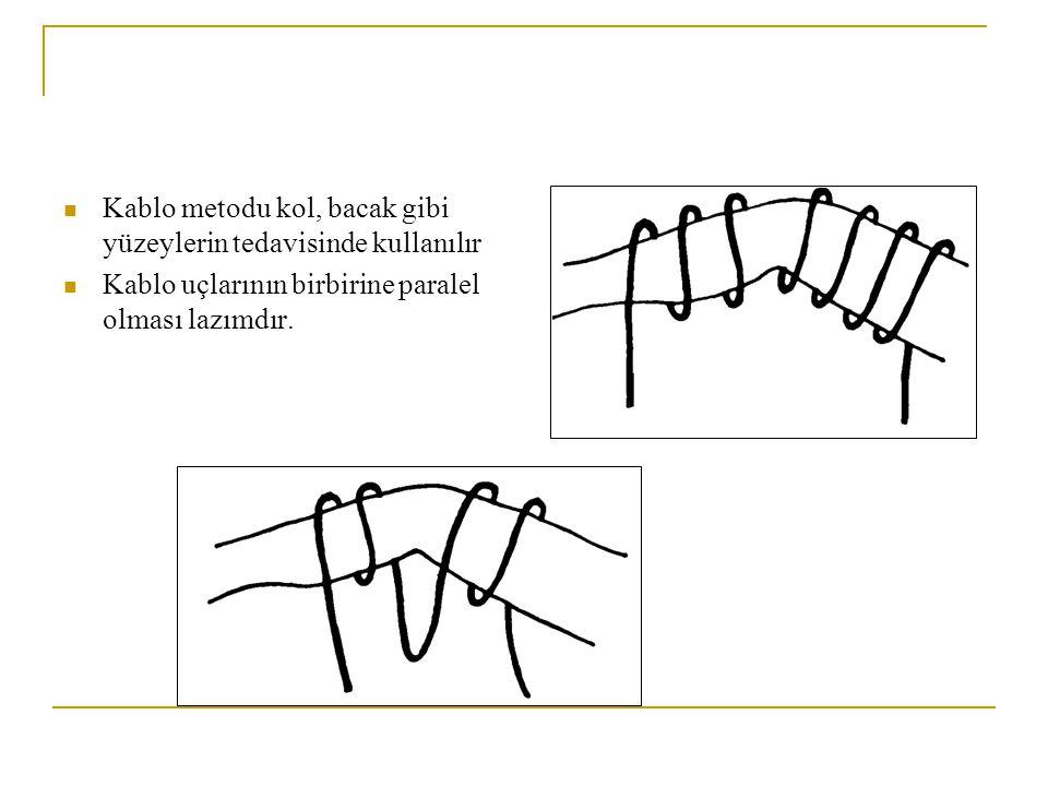 Kablo metodu kol, bacak gibi yüzeylerin tedavisinde kullanılır Kablo uçlarının birbirine paralel olması lazımdır.