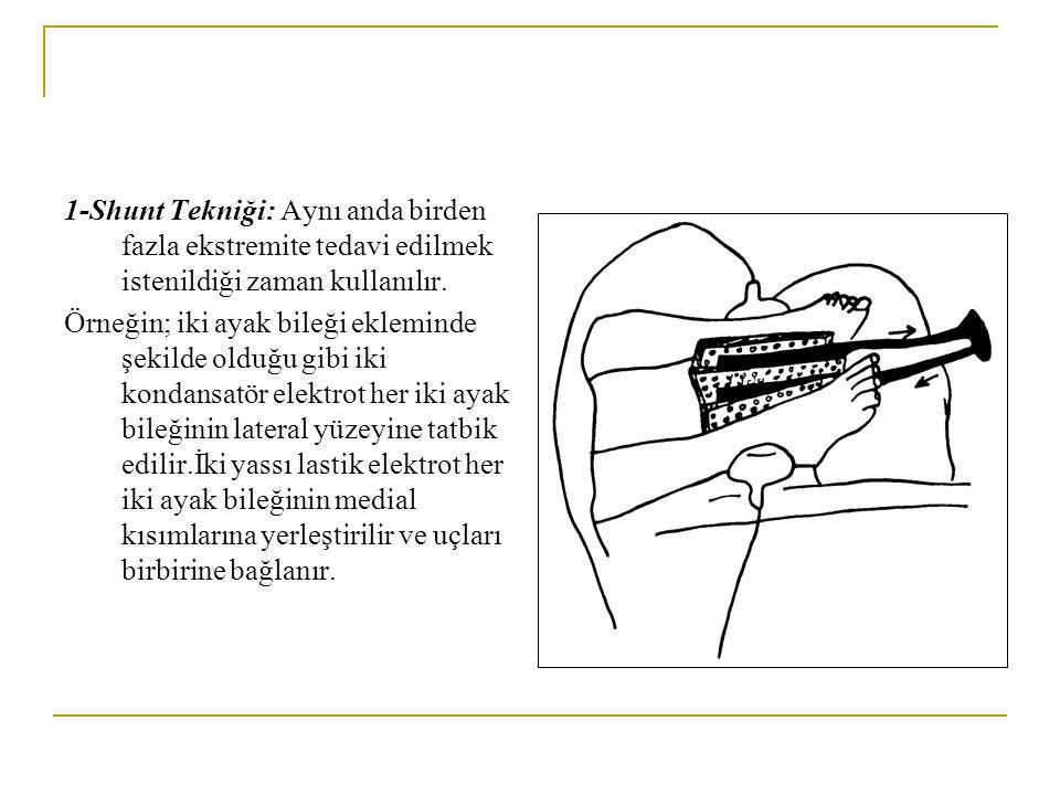 1-Shunt Tekniği: Aynı anda birden fazla ekstremite tedavi edilmek istenildiği zaman kullanılır. Örneğin; iki ayak bileği ekleminde şekilde olduğu gibi