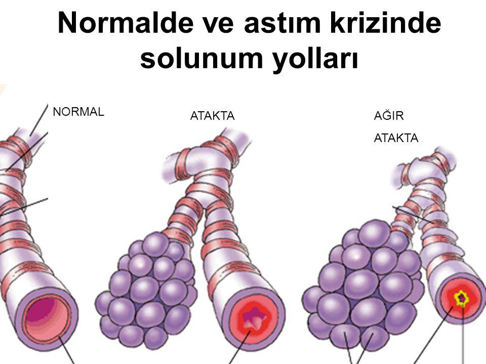 Allerji aşısının yararları Allerjene duyarsızlaşma yapar Hastalık belirtilerini hafifletir Allerjenle tetiklenme azalır İlaç kullanımı azalır Yeni allerjenlere duyarlanma azalır