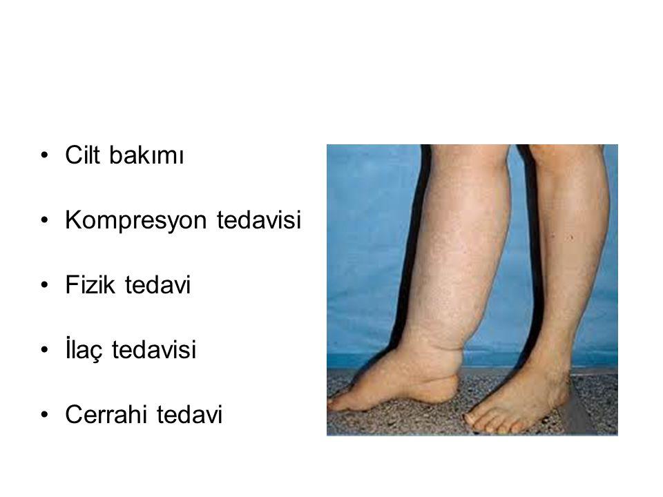 Cilt bakımı Kompresyon tedavisi Fizik tedavi İlaç tedavisi Cerrahi tedavi