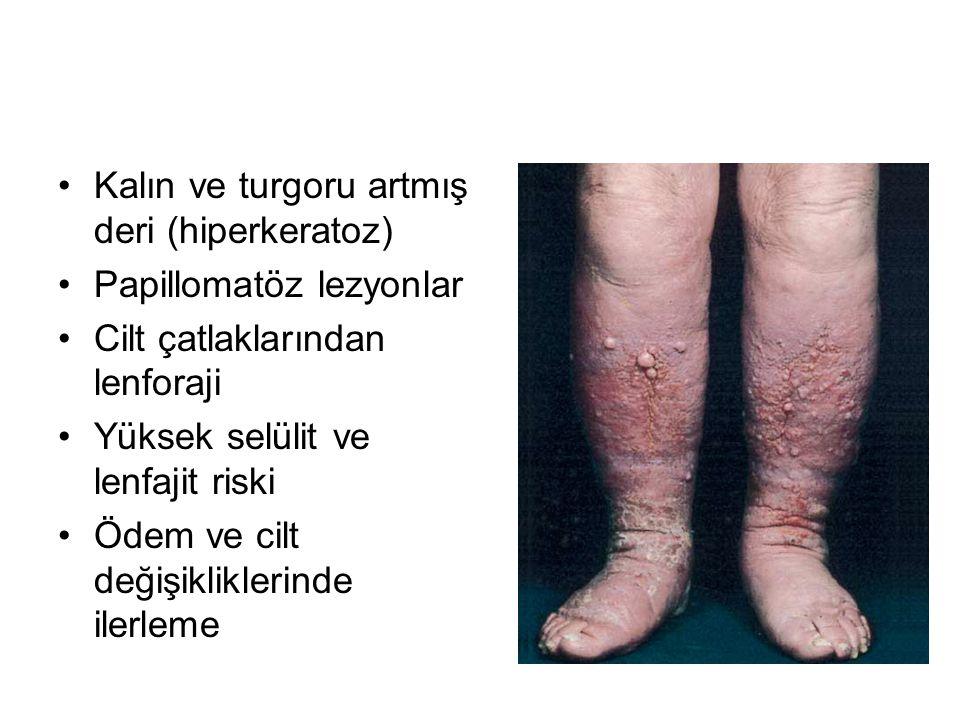 Kalın ve turgoru artmış deri (hiperkeratoz) Papillomatöz lezyonlar Cilt çatlaklarından lenforaji Yüksek selülit ve lenfajit riski Ödem ve cilt değişik
