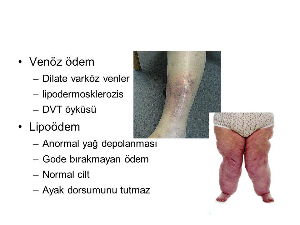 Venöz ödem –Dilate varköz venler –lipodermosklerozis –DVT öyküsü Lipoödem –Anormal yağ depolanması –Gode bırakmayan ödem –Normal cilt –Ayak dorsumunu