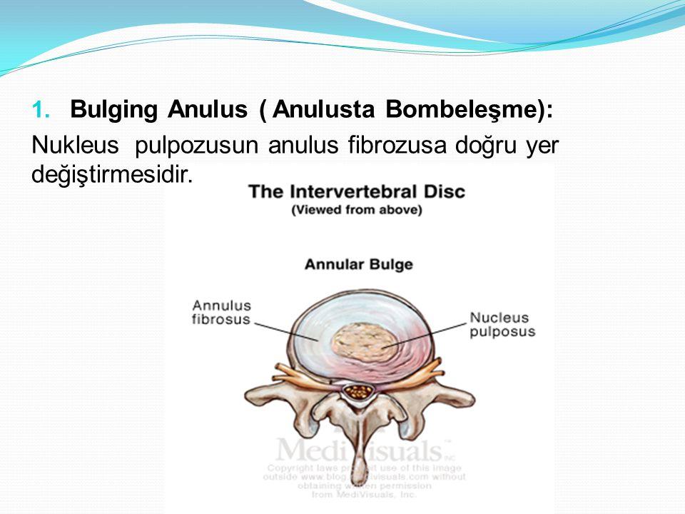 1. Bulging Anulus ( Anulusta Bombeleşme): Nukleus pulpozusun anulus fibrozusa doğru yer değiştirmesidir.