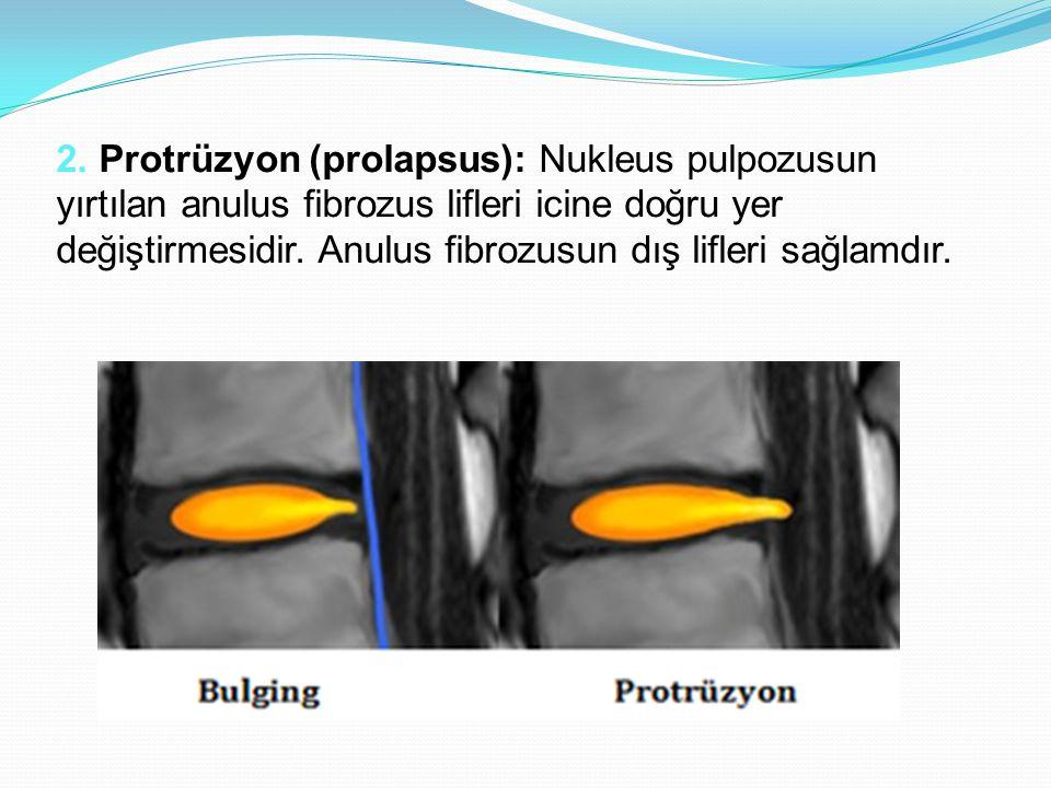 2. Protrüzyon (prolapsus): Nukleus pulpozusun yırtılan anulus fibrozus lifleri icine doğru yer değiştirmesidir. Anulus fibrozusun dış lifleri sağlamdı