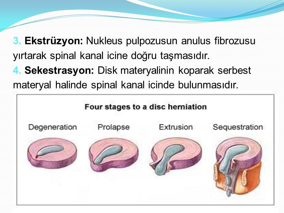 3. Ekstrüzyon: Nukleus pulpozusun anulus fibrozusu yırtarak spinal kanal icine doğru taşmasıdır. 4. Sekestrasyon: Disk materyalinin koparak serbest ma