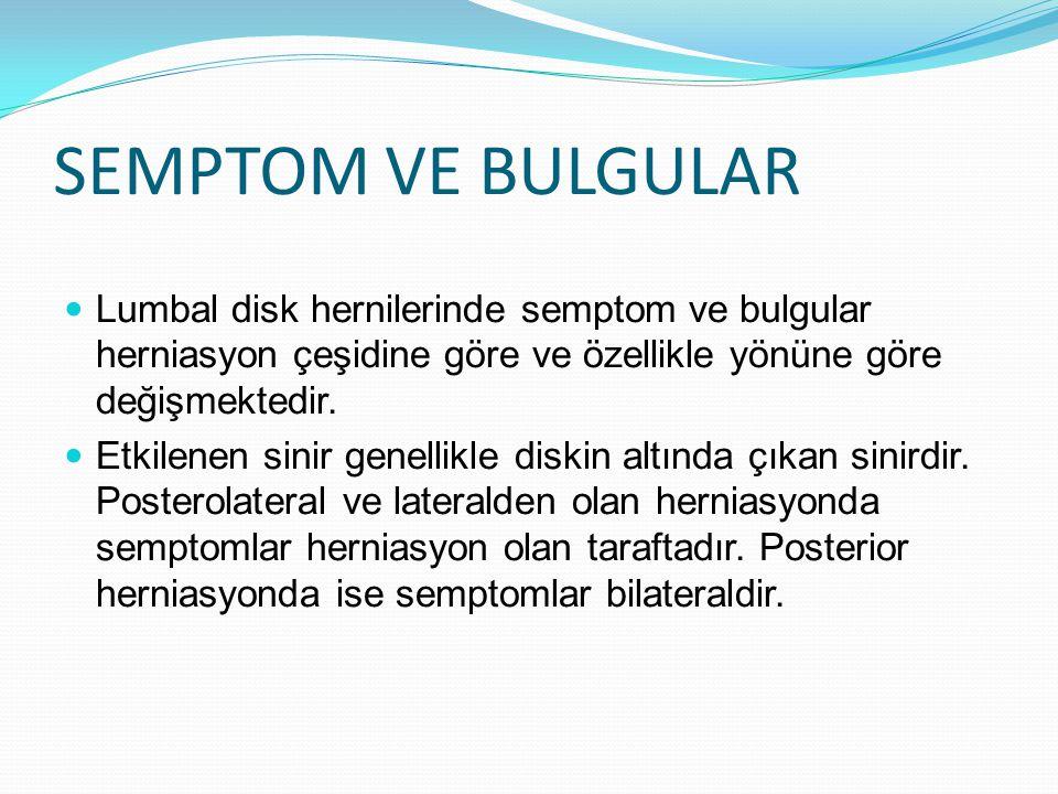 SEMPTOM VE BULGULAR Lumbal disk hernilerinde semptom ve bulgular herniasyon çeşidine göre ve özellikle yönüne göre değişmektedir. Etkilenen sinir gene