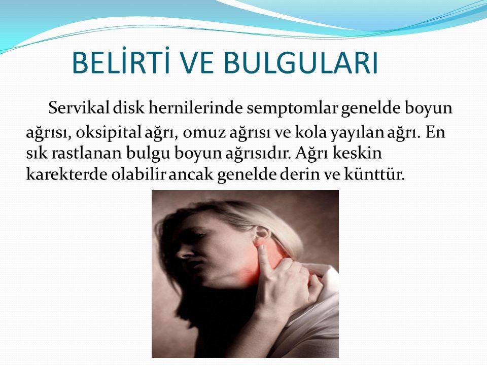 BELİRTİ VE BULGULARI Servikal disk hernilerinde semptomlar genelde boyun ağrısı, oksipital ağrı, omuz ağrısı ve kola yayılan ağrı. En sık rastlanan bu