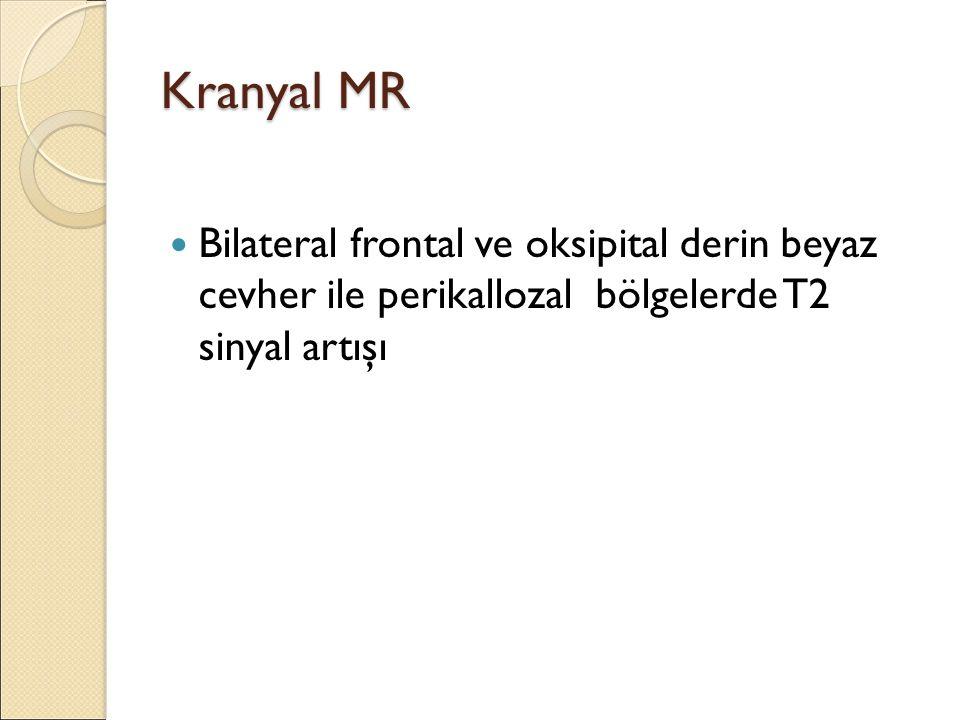 Kranyal MR Bilateral frontal ve oksipital derin beyaz cevher ile perikallozal bölgelerde T2 sinyal artışı