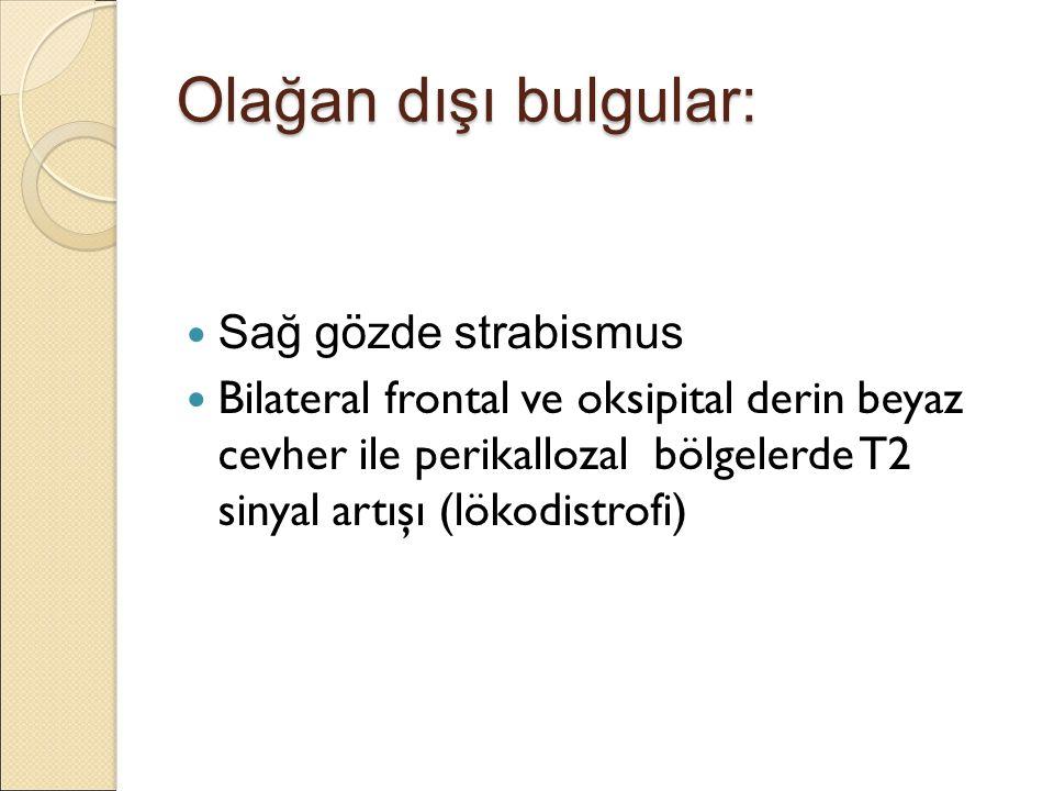 Olağan dışı bulgular: Sağ gözde strabismus Bilateral frontal ve oksipital derin beyaz cevher ile perikallozal bölgelerde T2 sinyal artışı (lökodistrofi)