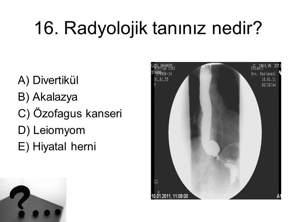 16. Radyolojik tanınız nedir? A) Divertikül B) Akalazya C) Özofagus kanseri D) Leiomyom E) Hiyatal herni