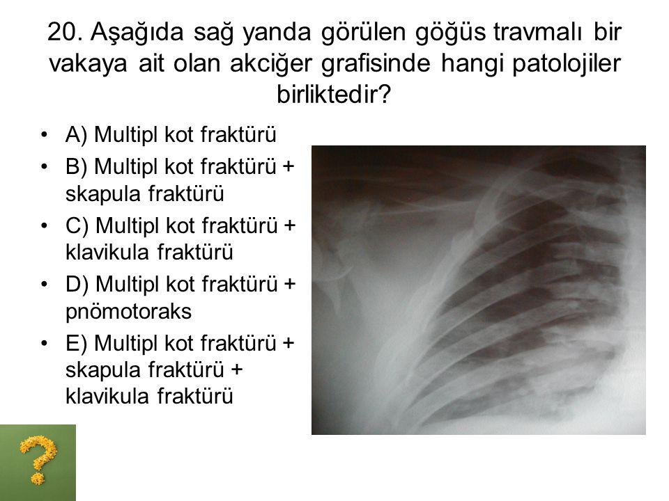 20. Aşağıda sağ yanda görülen göğüs travmalı bir vakaya ait olan akciğer grafisinde hangi patolojiler birliktedir? A) Multipl kot fraktürü B) Multipl