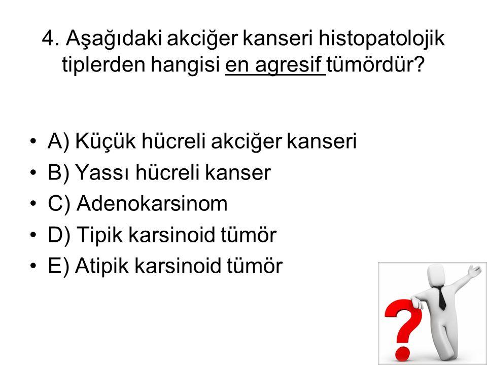 4. Aşağıdaki akciğer kanseri histopatolojik tiplerden hangisi en agresif tümördür? A) Küçük hücreli akciğer kanseri B) Yassı hücreli kanser C) Adenoka