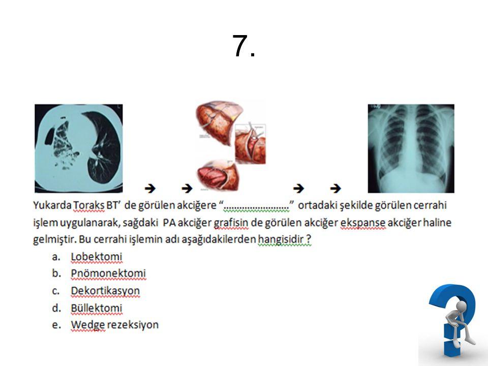 8.VATS ile hangi cerrahi işlem yapılamaz .