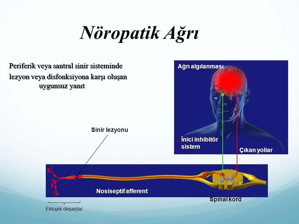 Ektopik deşarjlar Sinir lezyonu Spinal kord Nosiseptif afferent İnici inhibitör sistem Çıkan yollar Ağrı algılanması Periferik veya santral sinir sist