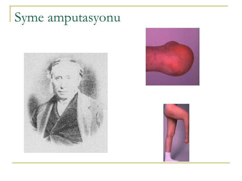 Syme amputasyonu