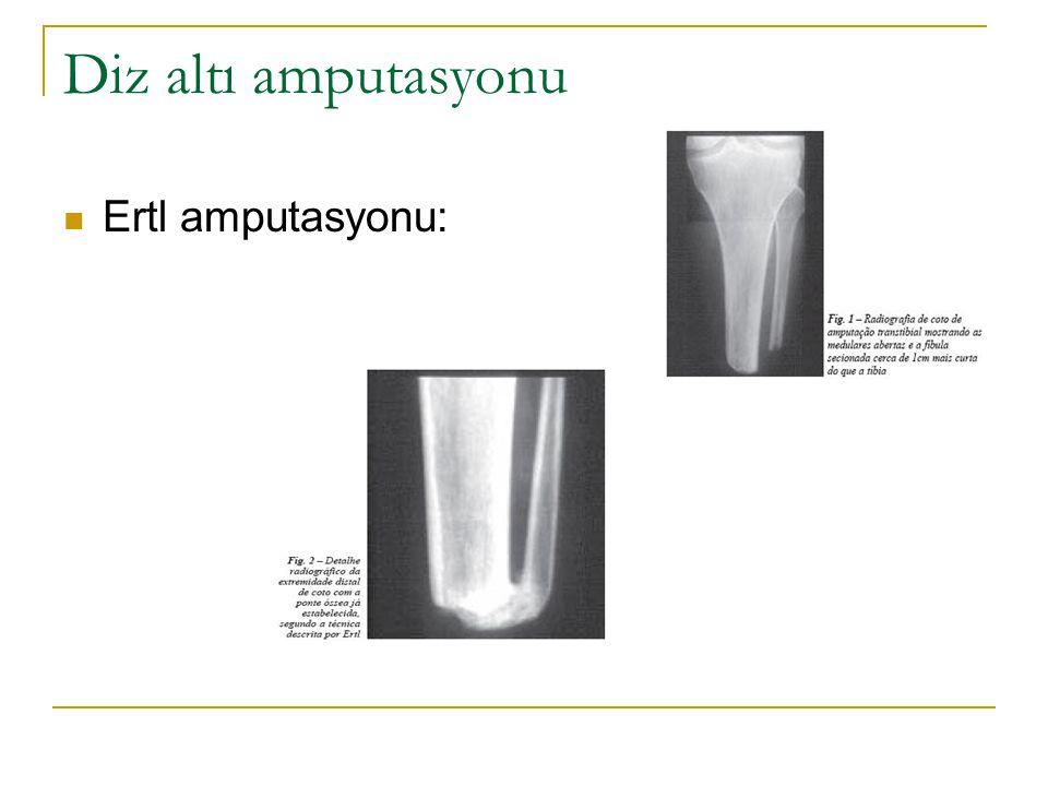 Diz altı amputasyonu Ertl amputasyonu: