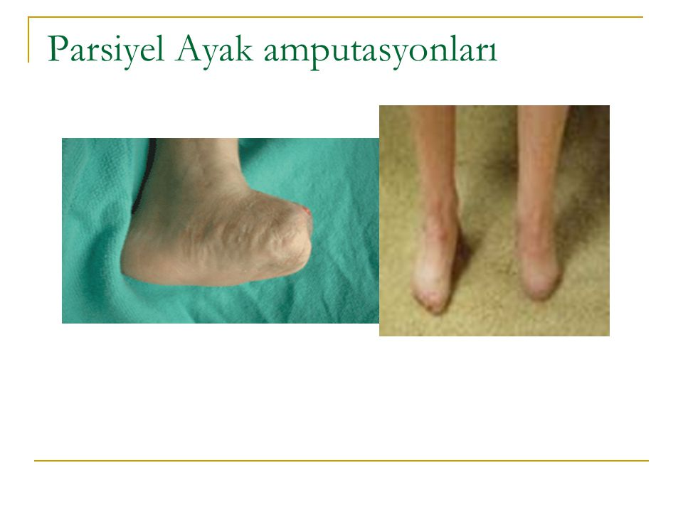 Parsiyel Ayak amputasyonları