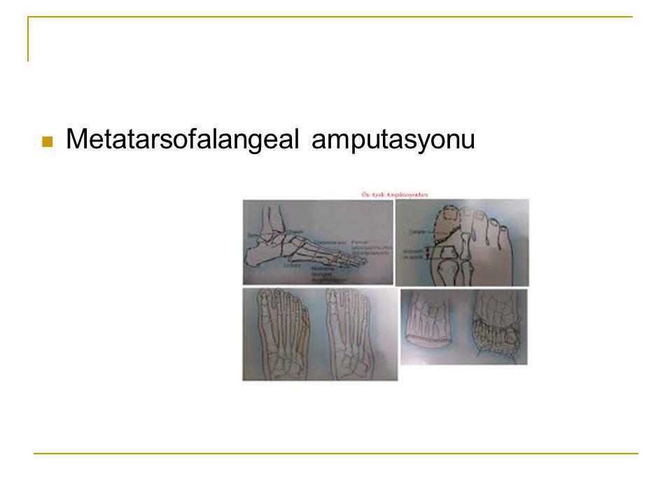 Metatarsofalangeal amputasyonu