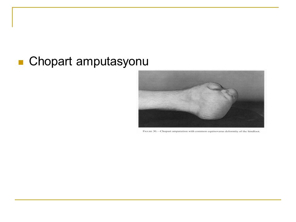 Chopart amputasyonu