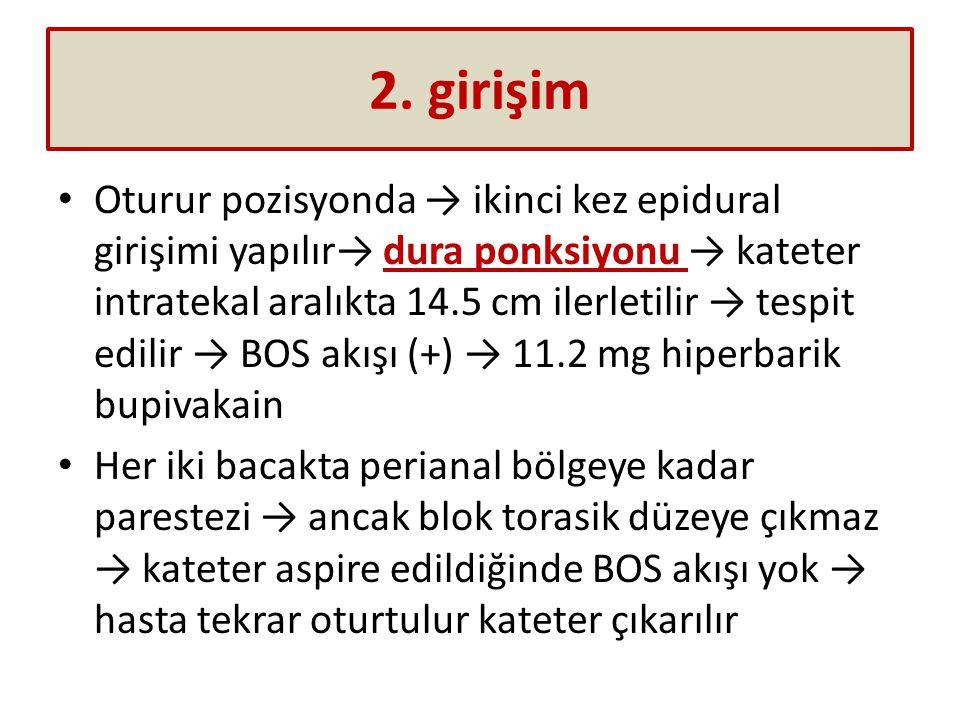 2. girişim Oturur pozisyonda → ikinci kez epidural girişimi yapılır→ dura ponksiyonu → kateter intratekal aralıkta 14.5 cm ilerletilir → tespit edilir