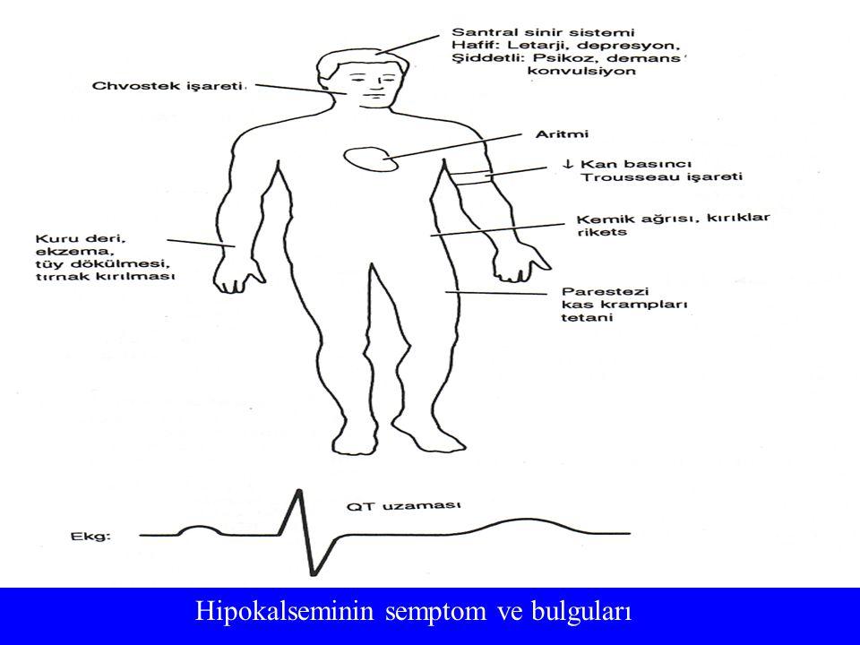 Hipokalseminin semptom ve bulguları