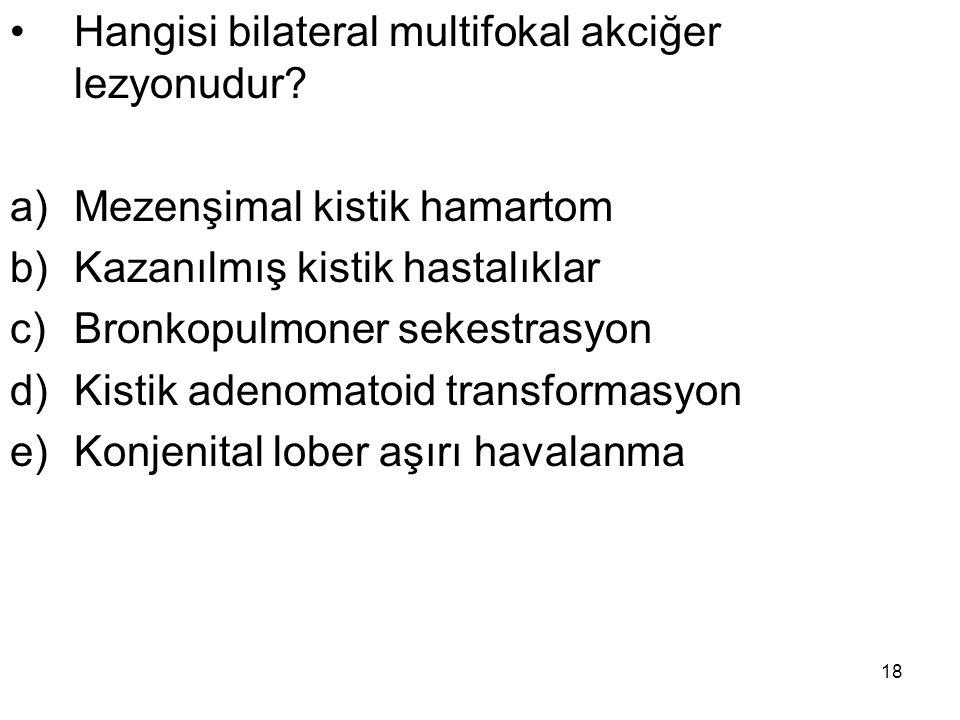 18 Hangisi bilateral multifokal akciğer lezyonudur? a)Mezenşimal kistik hamartom b)Kazanılmış kistik hastalıklar c)Bronkopulmoner sekestrasyon d)Kisti