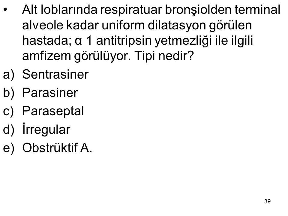 39 Alt loblarında respiratuar bronşiolden terminal alveole kadar uniform dilatasyon görülen hastada; α 1 antitripsin yetmezliği ile ilgili amfizem gör