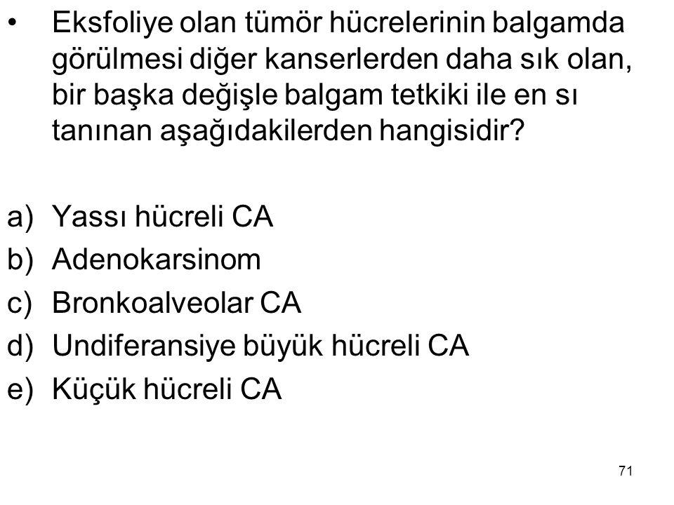71 Eksfoliye olan tümör hücrelerinin balgamda görülmesi diğer kanserlerden daha sık olan, bir başka değişle balgam tetkiki ile en sı tanınan aşağıdaki