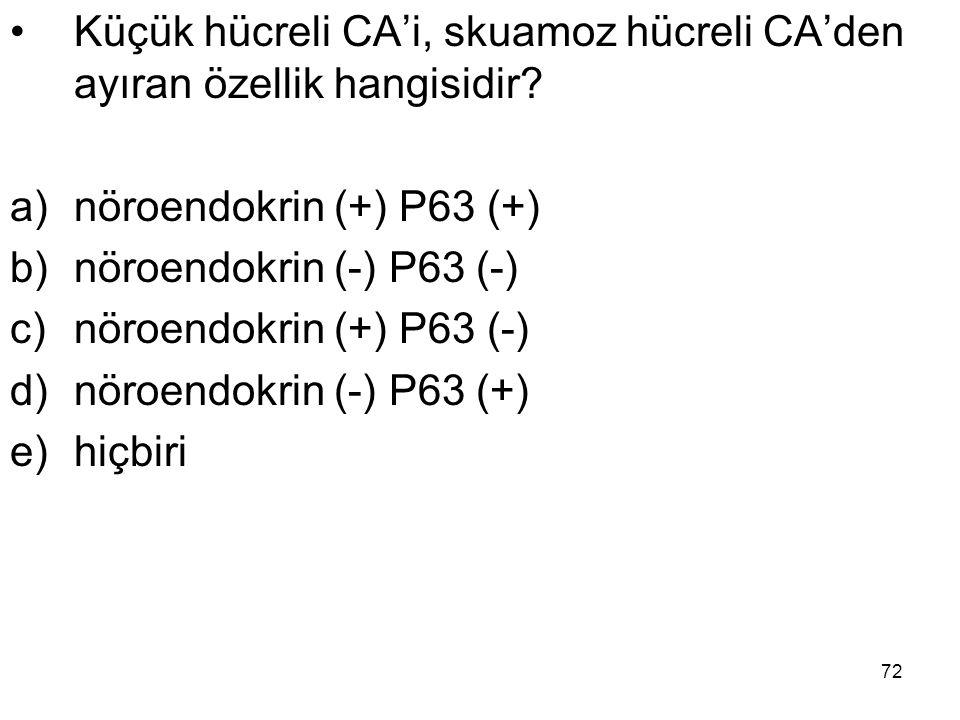 72 Küçük hücreli CA'i, skuamoz hücreli CA'den ayıran özellik hangisidir? a)nöroendokrin (+) P63 (+) b)nöroendokrin (-) P63 (-) c)nöroendokrin (+) P63