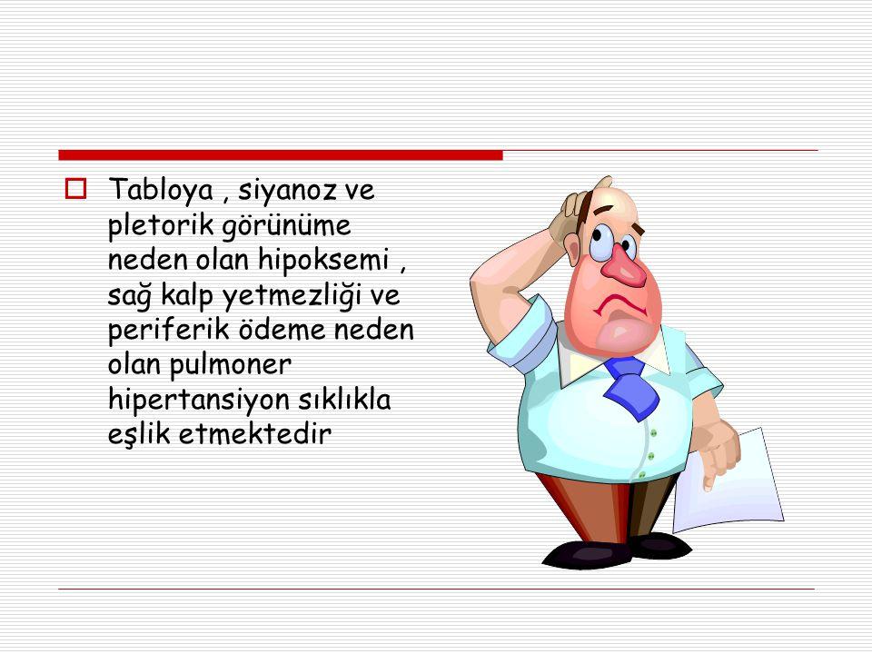  Tabloya, siyanoz ve pletorik görünüme neden olan hipoksemi, sağ kalp yetmezliği ve periferik ödeme neden olan pulmoner hipertansiyon sıklıkla eşlik