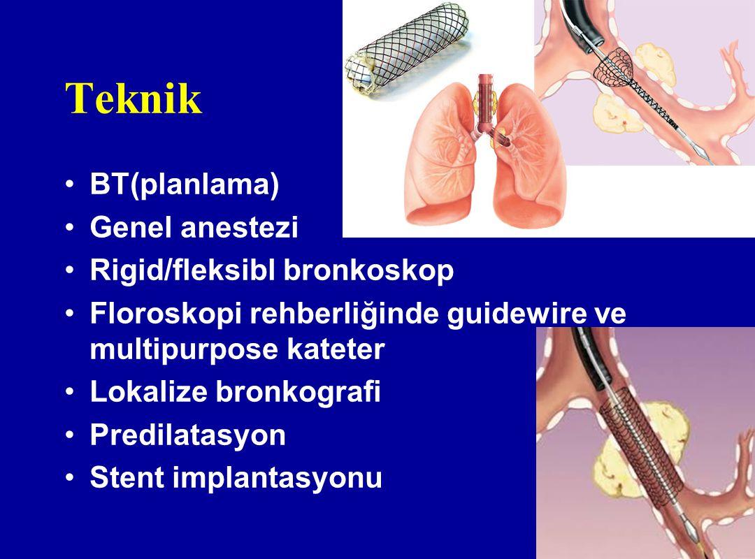 Teknik BT(planlama) Genel anestezi Rigid/fleksibl bronkoskop Floroskopi rehberliğinde guidewire ve multipurpose kateter Lokalize bronkografi Predilata