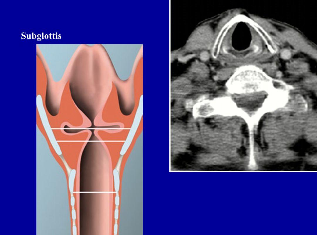 Subglottis