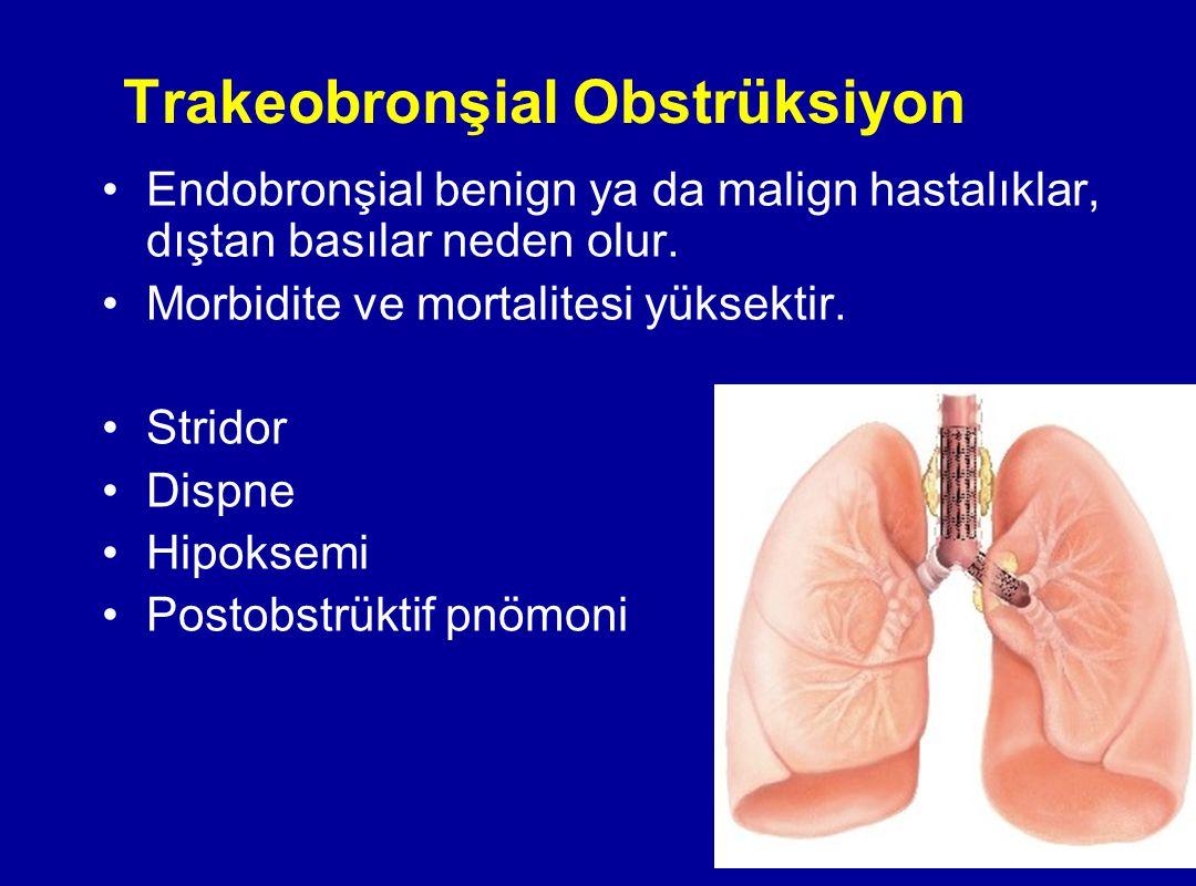 Trakeobronşial Obstrüksiyon Endobronşial benign ya da malign hastalıklar, dıştan basılar neden olur. Morbidite ve mortalitesi yüksektir. Stridor Dispn