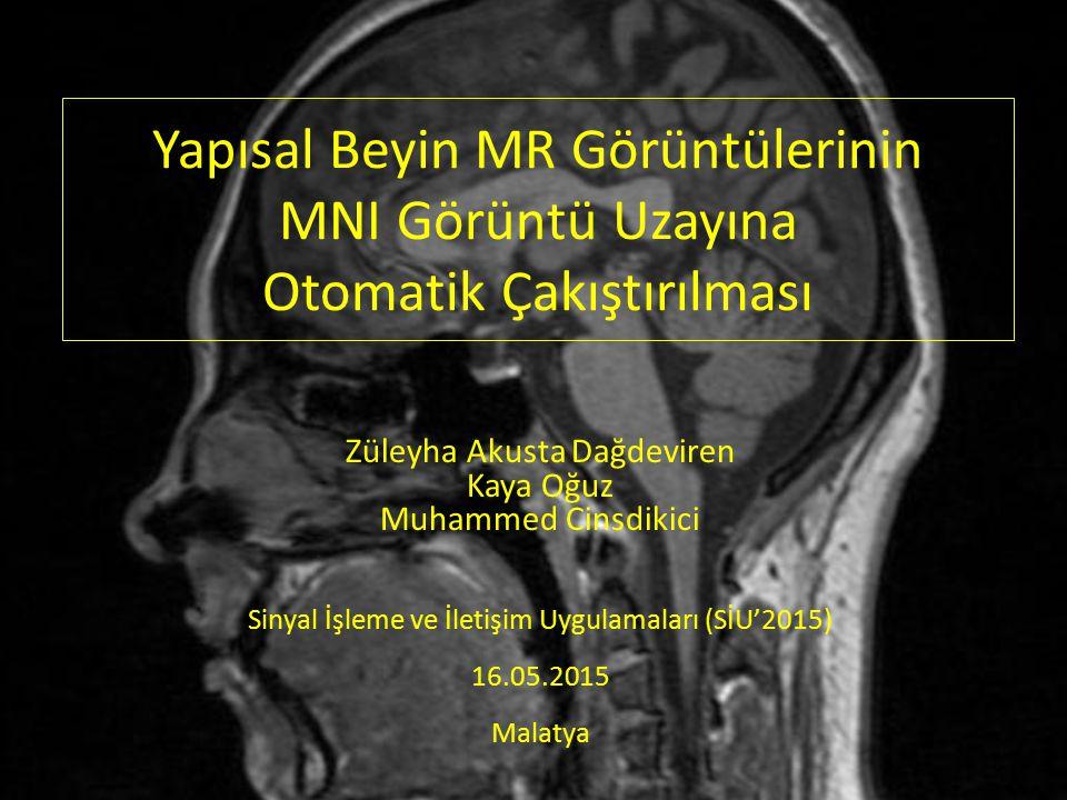 Talairach Beyin Atlası Talairach ve Tournoux (1988) tarafından sunulan Talairach beyin atlası, 60 yaşındaki bir bayanın ölümünden sonra beynin bölümleri üzerinde yapılan çalışma ile ortaya konmuştur.