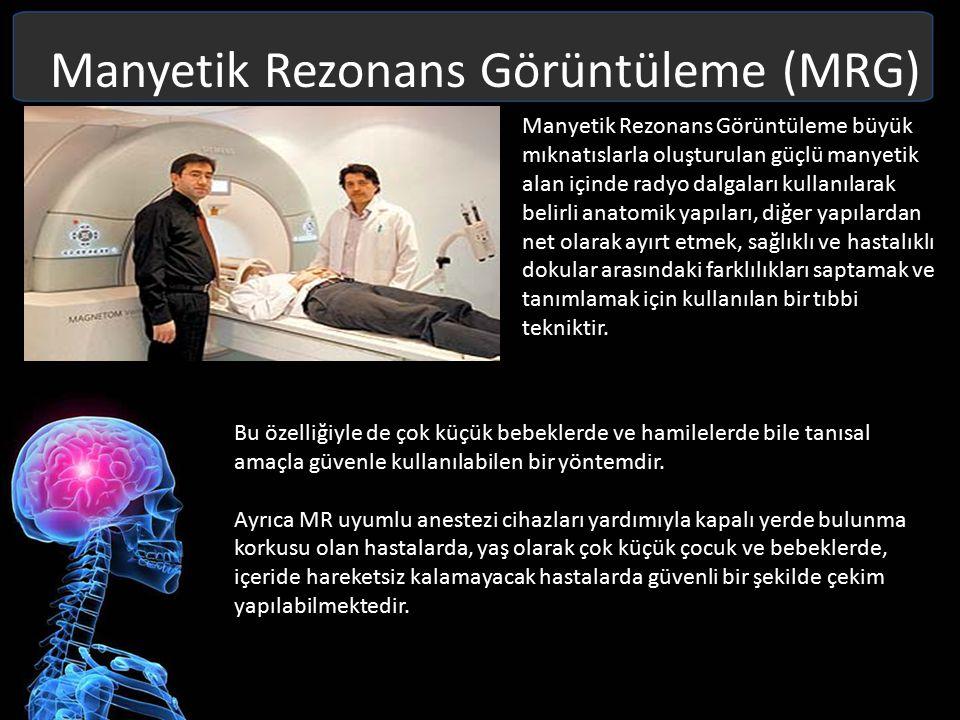 Manyetik Rezonans Görüntüleme (MRG) Dokudaki hidrojen atomlarının yoğunluklarına ve hareketlerine göre görüntü oluşturur.