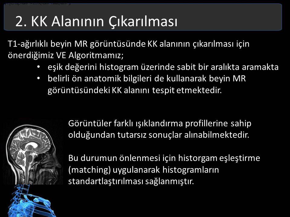 2. KK Alanının Çıkarılması T1-ağırlıklı beyin MR görüntüsünde KK alanının çıkarılması için önerdiğimiz VE Algoritmamız; eşik değerini histogram üzerin