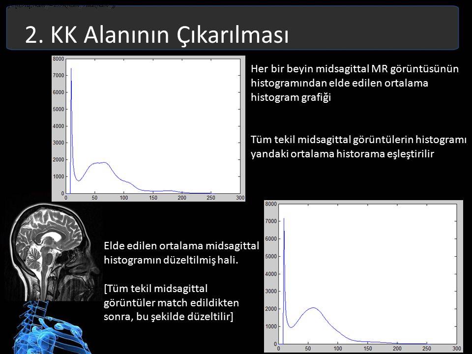 2. KK Alanının Çıkarılması Her bir beyin midsagittal MR görüntüsünün histogramından elde edilen ortalama histogram grafiği Tüm tekil midsagittal görün