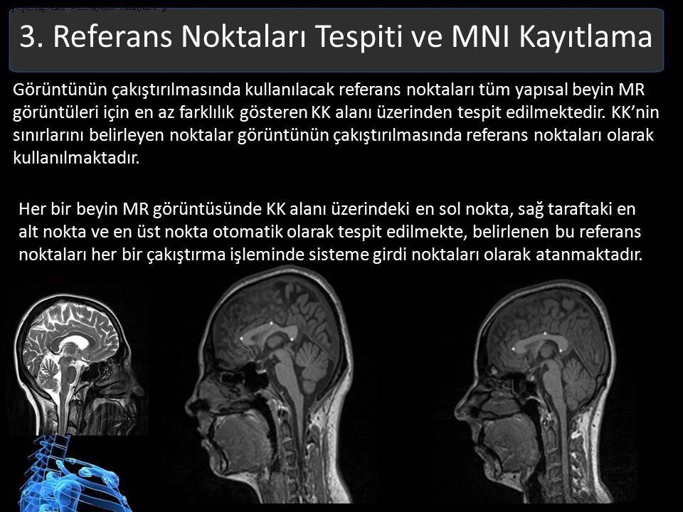 3. Referans Noktaları Tespiti ve MNI Kayıtlama Görüntünün çakıştırılmasında kullanılacak referans noktaları tüm yapısal beyin MR görüntüleri için en a