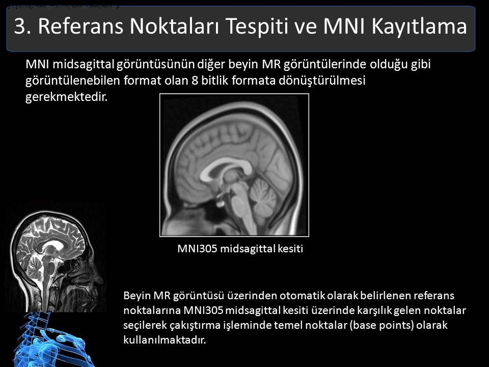 3. Referans Noktaları Tespiti ve MNI Kayıtlama MNI midsagittal görüntüsünün diğer beyin MR görüntülerinde olduğu gibi görüntülenebilen format olan 8 b