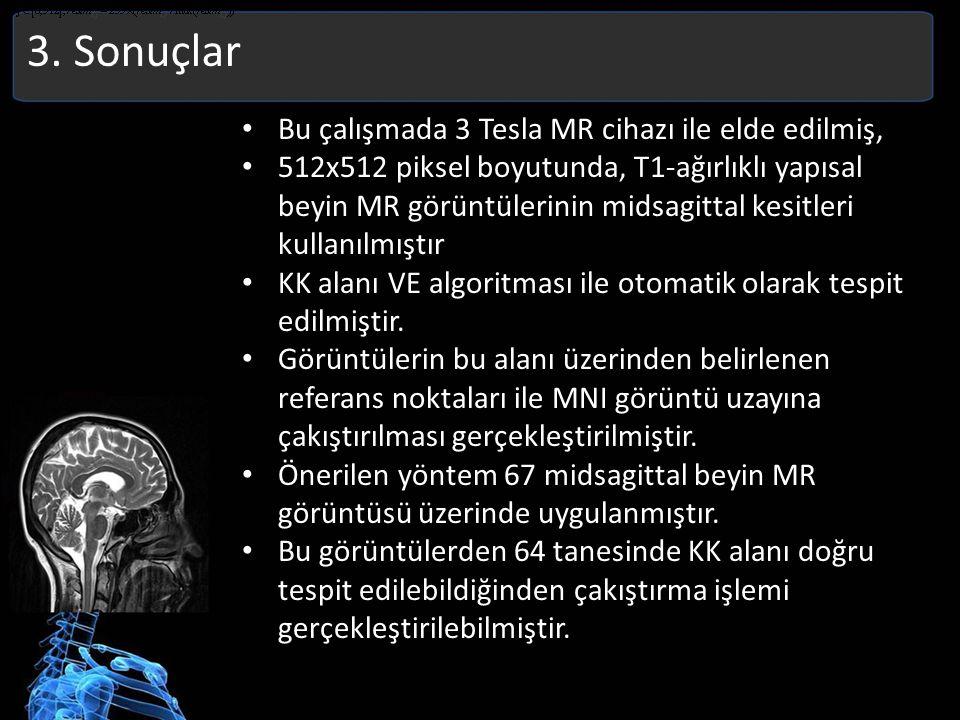3. Sonuçlar Bu çalışmada 3 Tesla MR cihazı ile elde edilmiş, 512x512 piksel boyutunda, T1-ağırlıklı yapısal beyin MR görüntülerinin midsagittal kesitl