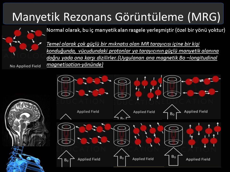 Manyetik Rezonans Görüntüleme (MRG) Protonların büyük bir bölümü, ana magnetik yönünde paralel bir dizilim gösterirler (düşük enerji).